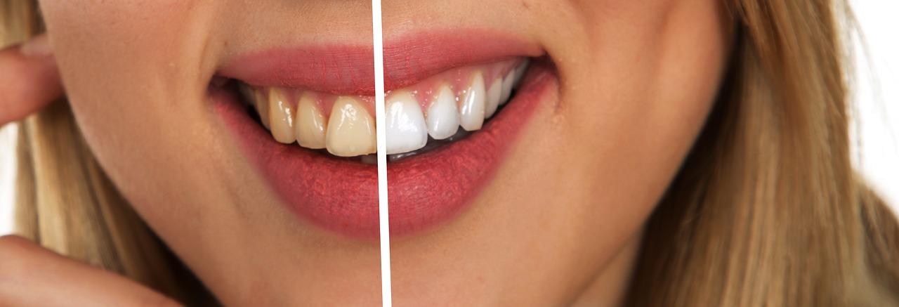 Blanchir ses dents de façon naturelle